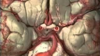 Анатомия человека. Кровеносные сосуды головы и шеи.