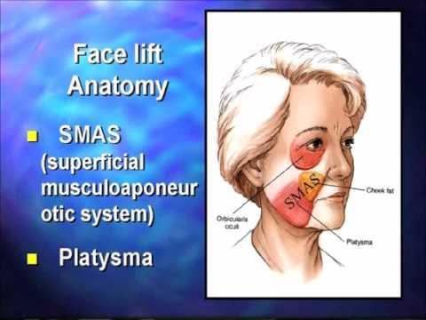 Face Lift | Neck Lift | Seattle Plastic Surgery | UWTV Lecture