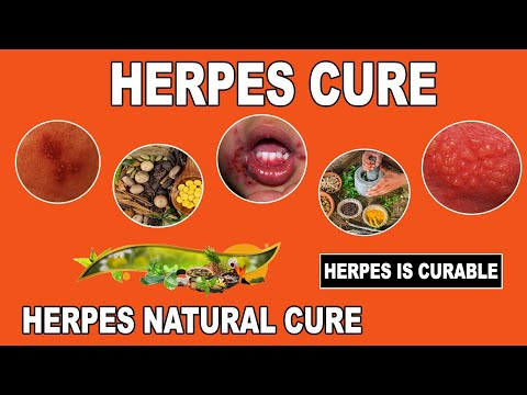 Herpes Cure 2017 -  Breakthrough Herpes Cure Found   Massive News For Herpes Patients