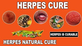 Herpes Cure 2017 -  Breakthrough Herpes Cure Found | Massive News For Herpes Patients(Herpes cure 2017 has been found. It is a massive breakthrough for herpes sufferers. This news has ripped after the herpes industry. No longer will there be ..., 2016-12-16T13:24:33.000Z)