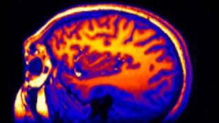 3D MRI of human brain