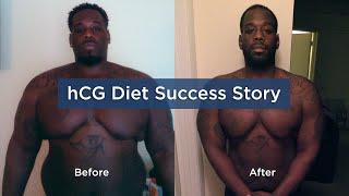 hCG Diet Success Story at Atlantis Medical