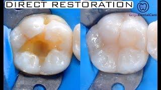 Replacing Amalgam - Direct Restoration Class I Composite