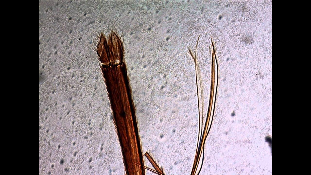 Mücke Mundwerkzeug - Mikroskop HD Videos - YouTube