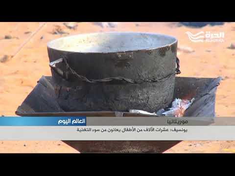 يونيسف: عشرات الآلاف الأطفال في موريتانيا يعانون من سوء التغذية  - 18:21-2018 / 1 / 21