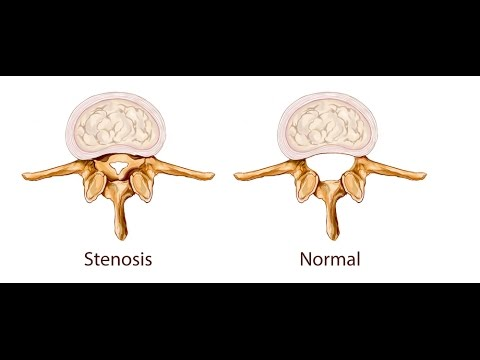 Spinal Stenosis: Cause and Correction