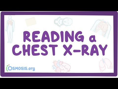 reading-a-chest-x-ray