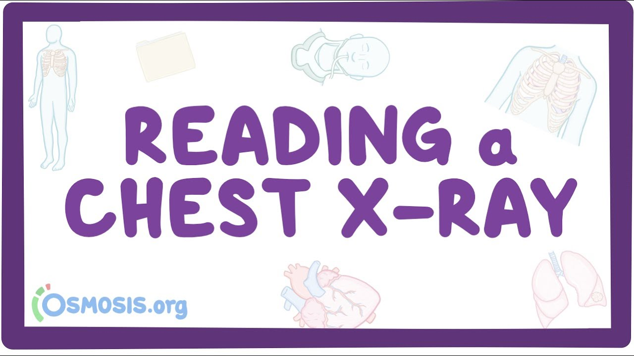 Reading a chest X-ray