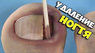 Симулятор удаления вросшего ногтя Ingrown Toenail Surgery