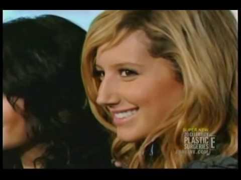 Did Ashley Tisdale Get a Nose Job (Rhinoplasty?)