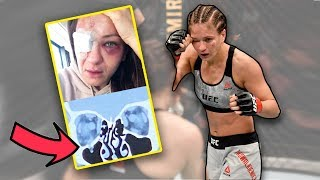 Gambar cover Doctor Explains Serious UFC Eye Injury for Karolina Kowalkiewicz - UFC Fight Night 168
