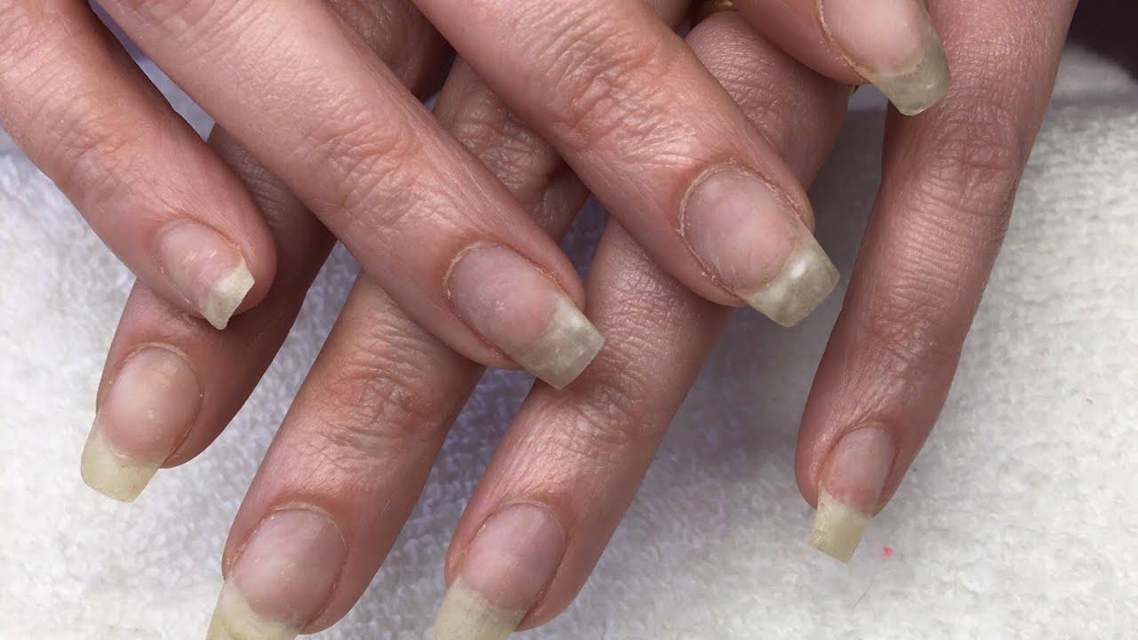 Acrylic Nails   How I Soak Off Acrylic Nails   Acrylic Removal - YouTube