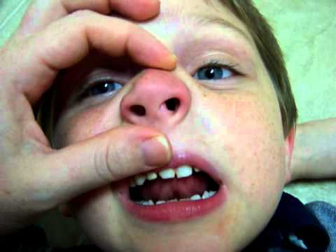 LEGO Stuck in Child's NOSE!!! Mothers have your Kids Watch THIS!!
