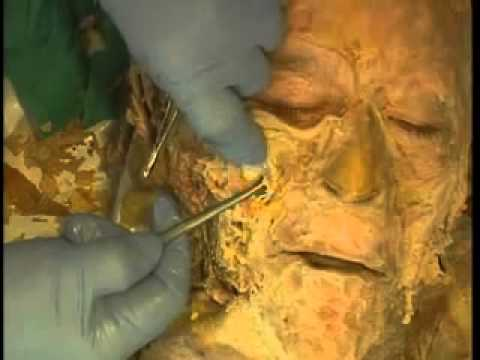 Head and Neck Anatomy Cadaver Dissection Tutorial - YouTube