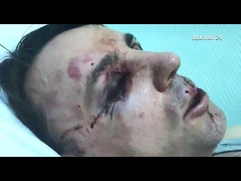УЖАСЫ СЕРКОНСА - специальный репортаж телеканала Москва 24 про избитых девушек и журналистов