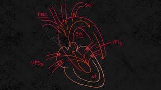 Congestiva pierna cardíaca hinchada insuficiencia izquierda