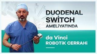 """""""da Vinci Robotik Cerrahi"""" Sistemiyle Duodenal Switch Ameliyatı  Prof. Dr. Mahir Özmen"""