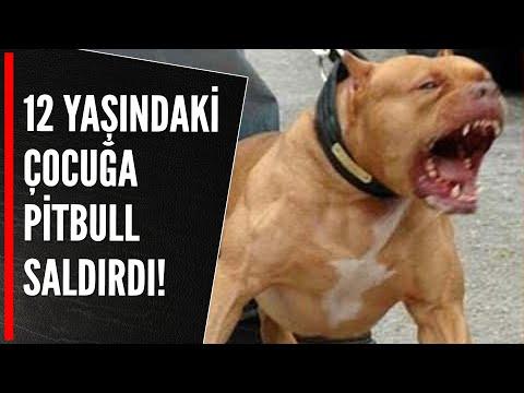 12 yaşındaki çocuğa pitbull saldırdı!