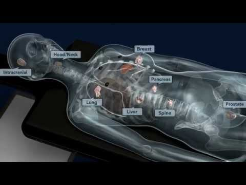 CyberKnife M6 Motion Management Animation