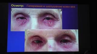 видео Демодекозный блефарит: причины, симптомы, лечение.