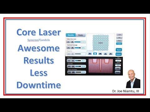 Core Laser Showcase: Maximum Rejuvenation with Less Downtime