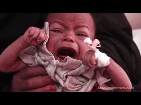 The heartbreaking story behind this starving baby