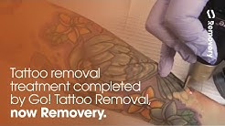Laser Tattoo Removal On Forearm With PicoSure [4K]