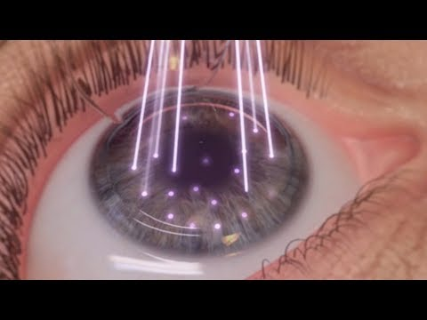 WaveLight For LASIK - WVU Medicine Health Report