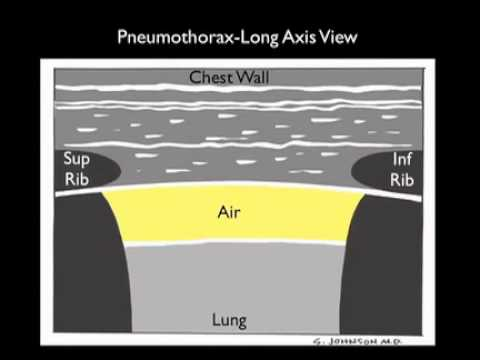 How to: Ultrasound for Pneumothorax Case Study