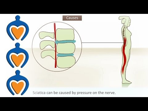 Sciatica - What is it and how is it treated?
