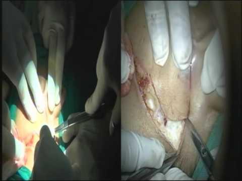 Microscopic Parotidectomy ( Case 1 ) UNEDITED - Dr. Satish Jain - www.skullbase360.in ..