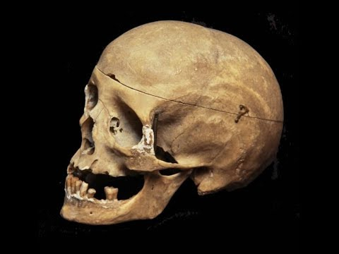 Mandela Effect New Holes In The Human Skull Once Again Part 1