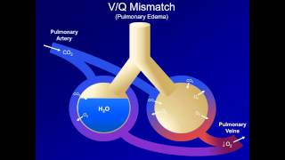 hypoxia and hypoxemia mechanisms and etiologies abg interpretation lesson 18