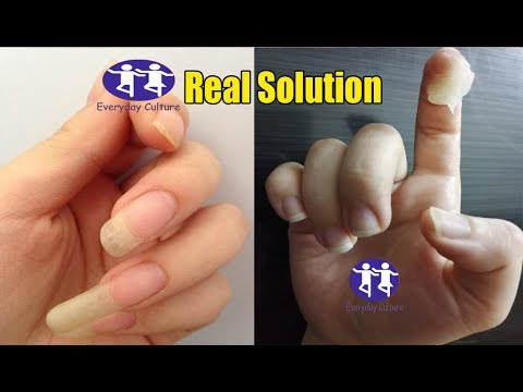 Best Solution To Grow Nails fast in 3 days Brilliant Hacks to Grow Nails faster  fast way to grow yo