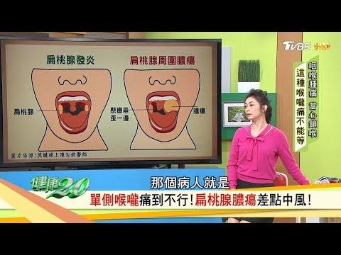 喉嚨痛傻傻分不清?扁桃腺反覆發炎,久久不治索性切掉扁桃腺!健康2.0
