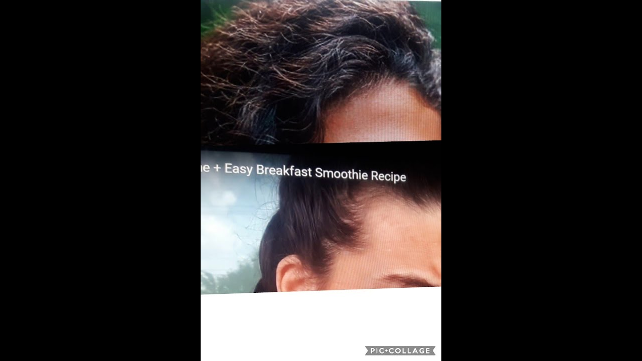 Hair Loss - How To Stop Hair Loss On A Vegan Diet - YouTube