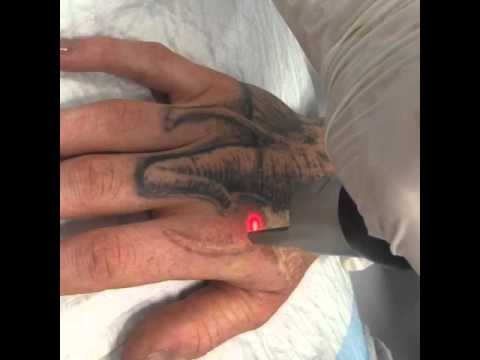Laser Tattoo Removal hand. Performed using the Picosure laser. - YouTube