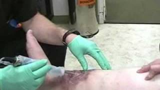 venous leg ulcer - phage clinical trial