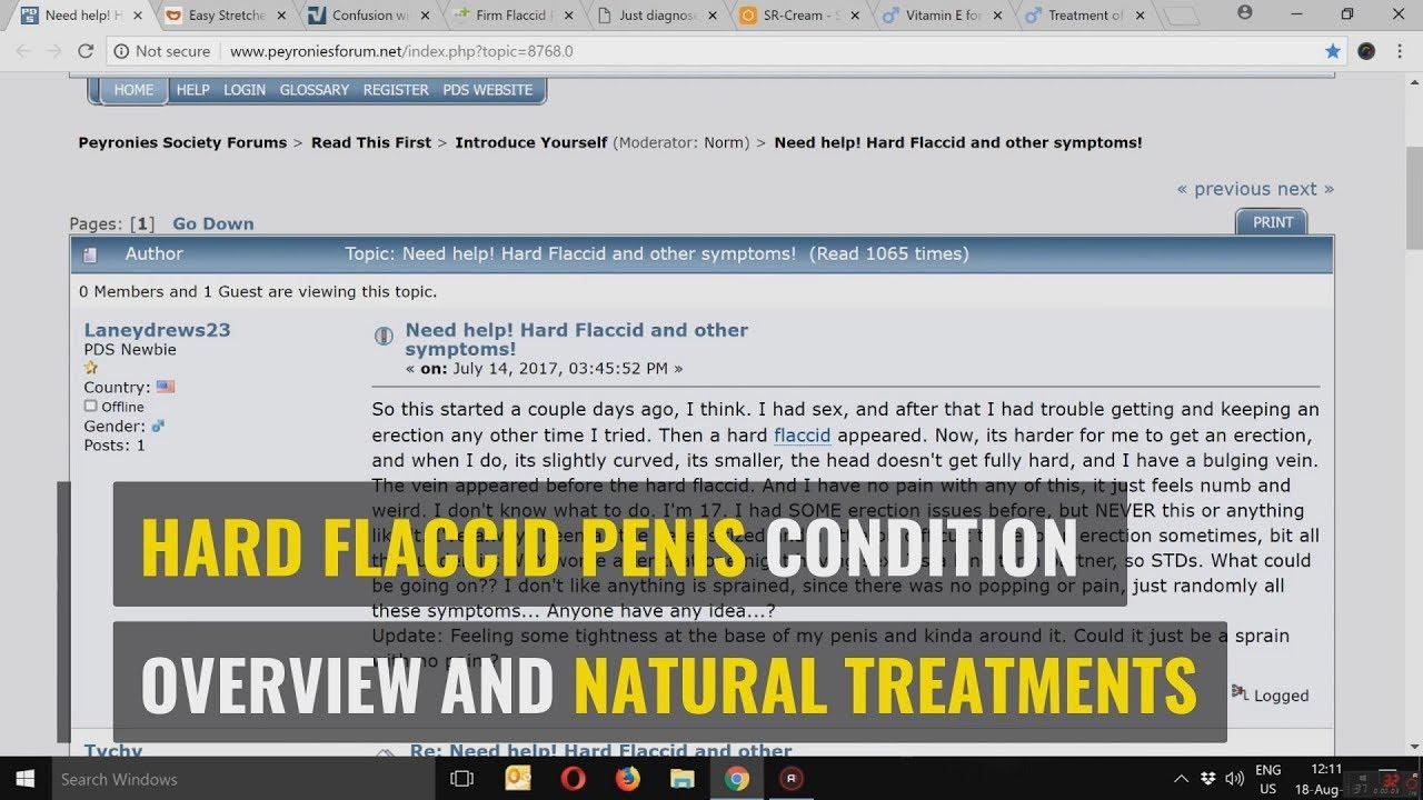 grote flacid penis