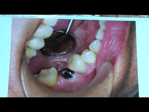 Dental Implants New Procedures Technology Low Cost Dental Implant Modesto Dentist Youtube