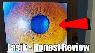 VLOG #3: I got LASIK (Actual Footage of Surgery) | An Honest Review