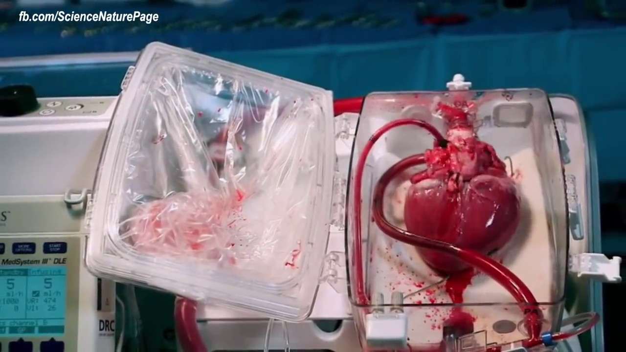 Amazing Living Human Heart In Box Medical Breakthrough 2017 Youtube