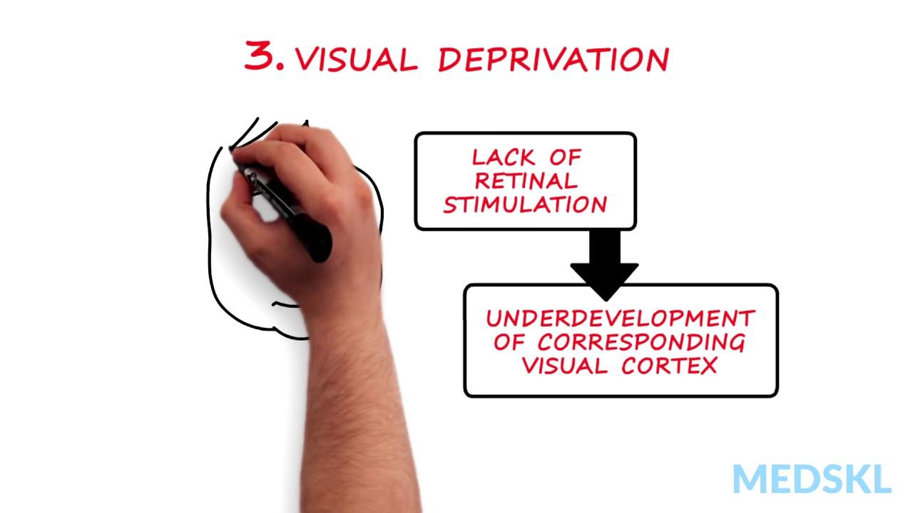 hogyan lehet javítani a látásélességet amblyopia-ban)