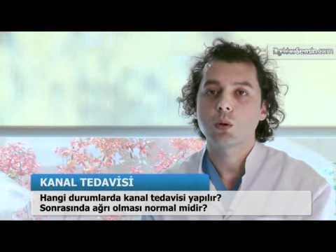 Hangi durumlarda kanal tedavisi yapılır?