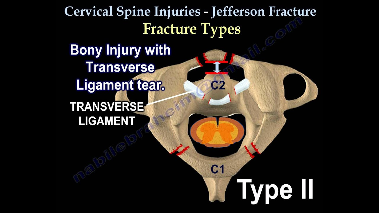 Cervical Spine Injuries Jefferson Fracture - Everything You Need ...