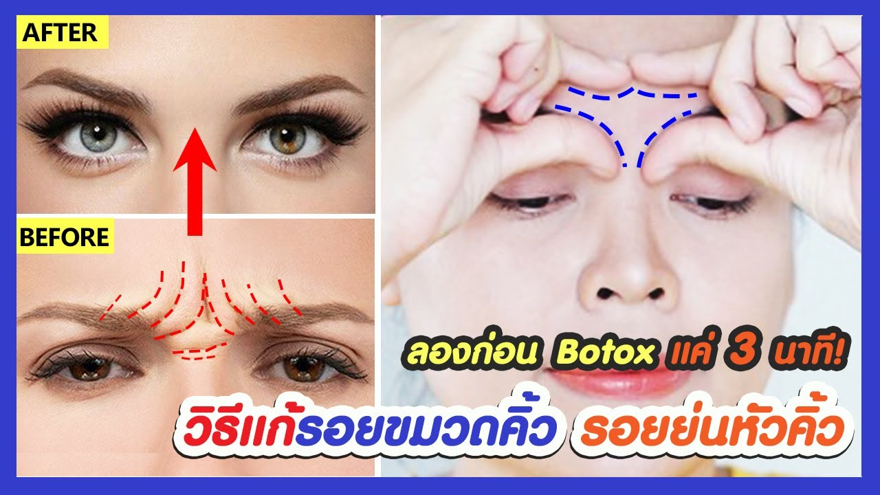 ลองก่อน botox รอยขมวดคิ้ว!! วิธีแก้ติดขมวดคิ้วเองตลอดเวลา ลดรอยขมวดคิ้ว รอยย่นหัวคิ้ว เพียง 3 นาที!