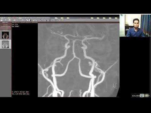ct angio cerebral artery