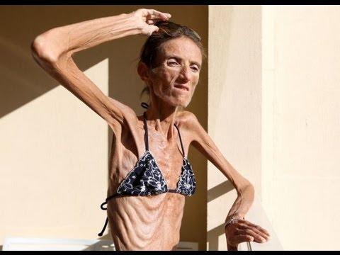Skinniest man alive