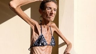 Skinniest Person In The World- 55 lbs