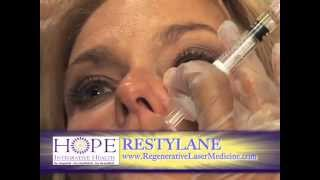 Proper Use of Radiese and Restylane Thumbnail